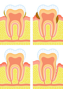 do you have loose or wobbly teeth? If the other two symptoms didn't send alarm bells a-ringing then loose teeth certainly should! When it comes to loose teeth, your main concern is really what has caused them to be wobbly? One of the main causes of tooth loss is periodontal disease.
